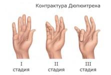 Безплатни профилактични прегледи за ортопедични нарушения - д-р Биляна Божанина